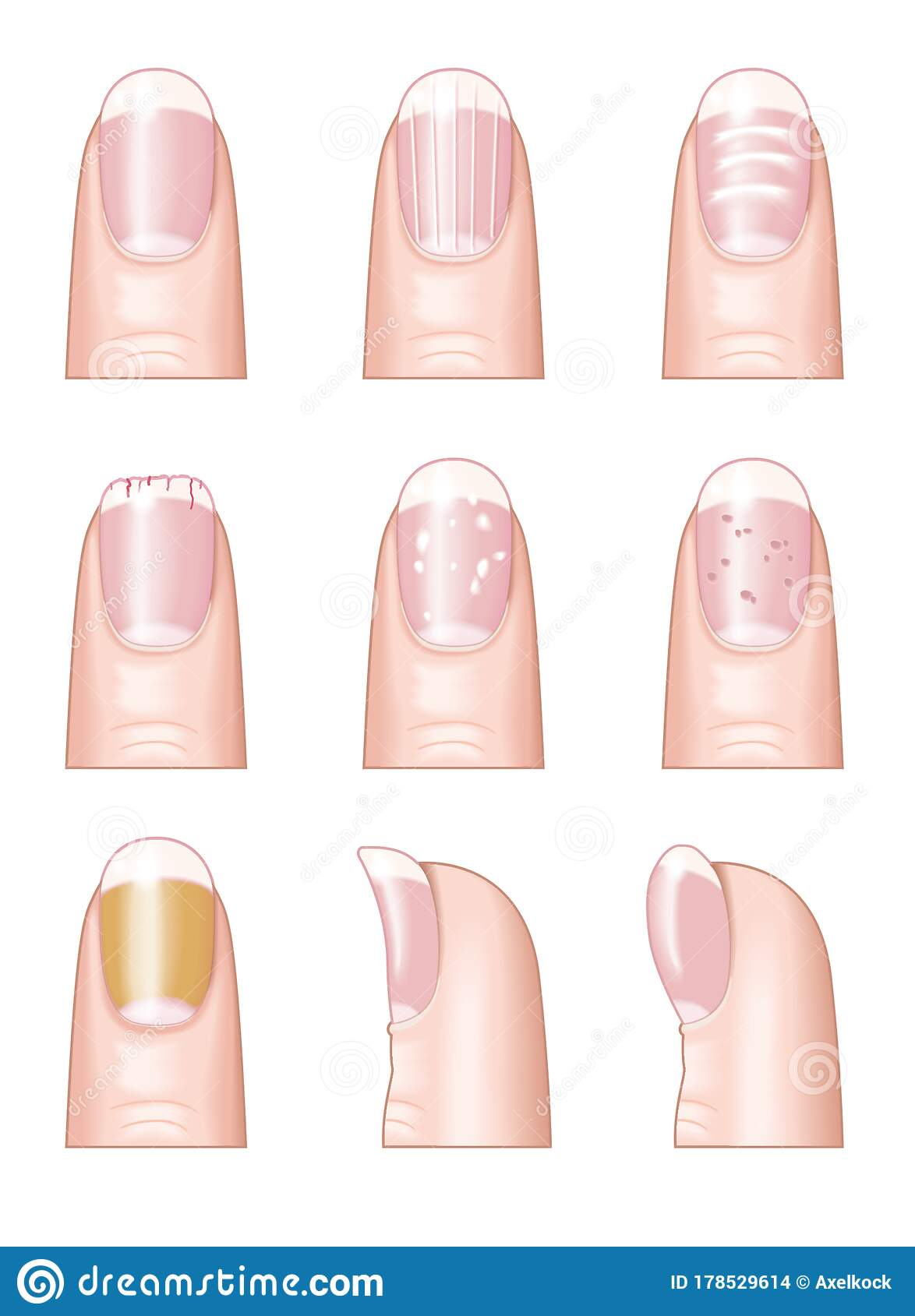 10 Nail Diseases And Disorders : diseases, disorders, Diseases, Stock, Illustrations, Illustrations,, Vectors, Clipart, Dreamstime