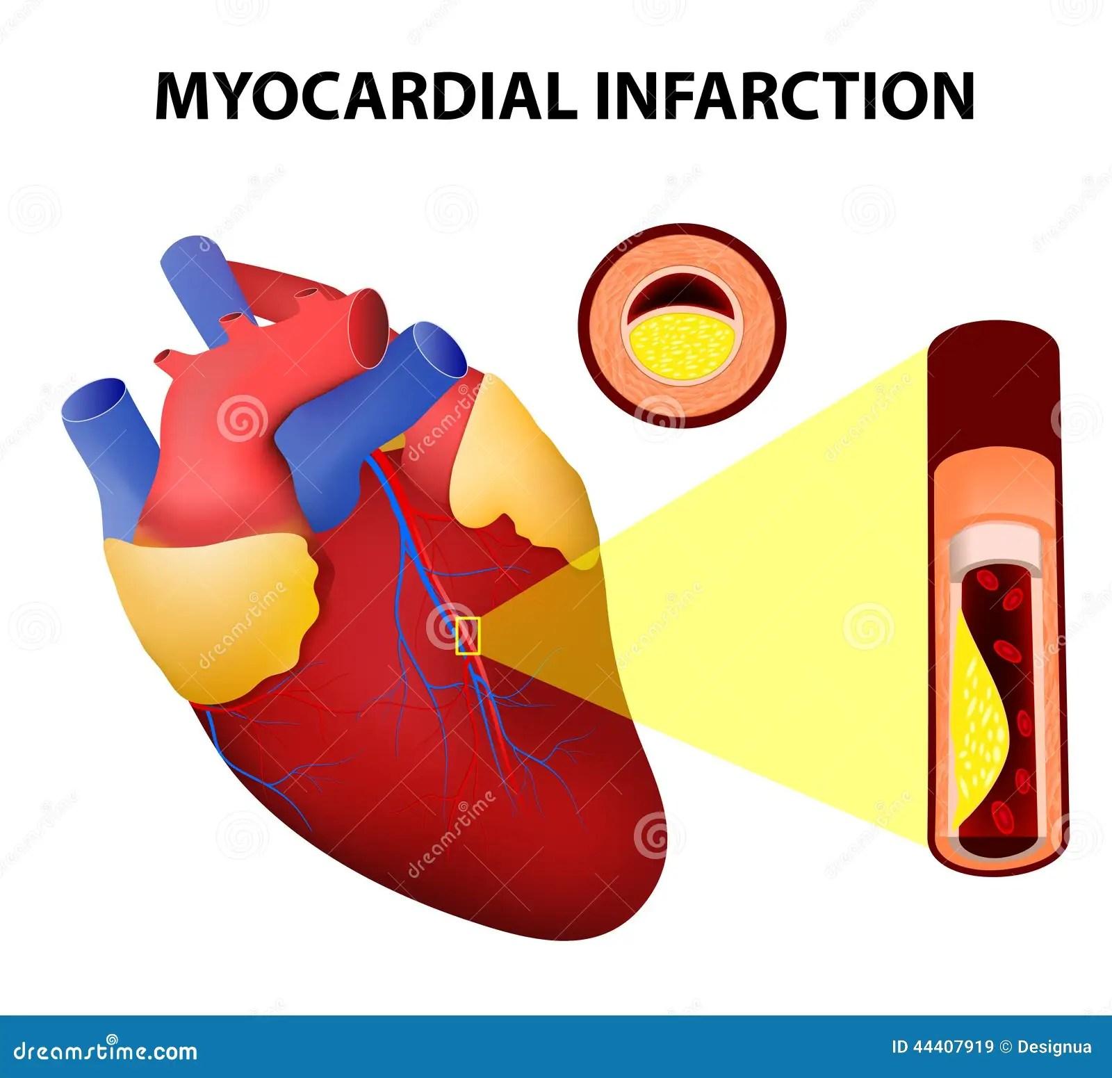 Myocardial Infarction Cartoon Vector