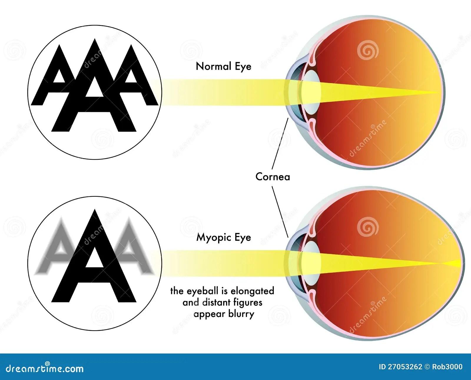 long and short sighted diagram 1999 subaru impreza headlight wiring myopia stock photography image 27053262