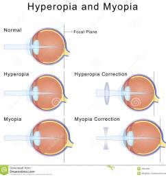 illustration of myopia and hyperopia condition of the eyes and their correction [ 1300 x 1337 Pixel ]