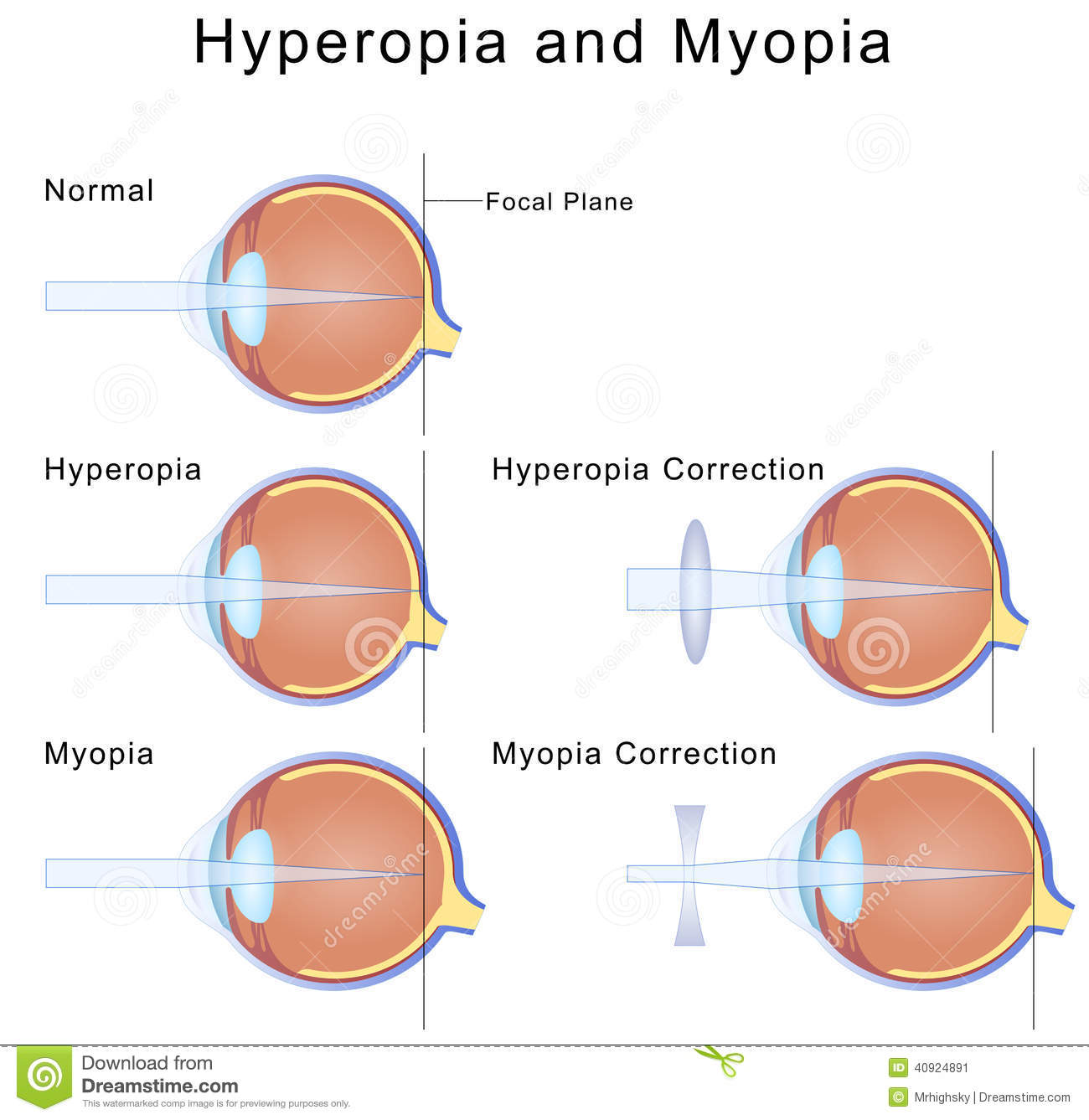 hight resolution of illustration of myopia and hyperopia condition of the eyes and their correction