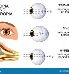 illustration of a healthy eye the eye myopia and hyperopia [ 1300 x 928 Pixel ]