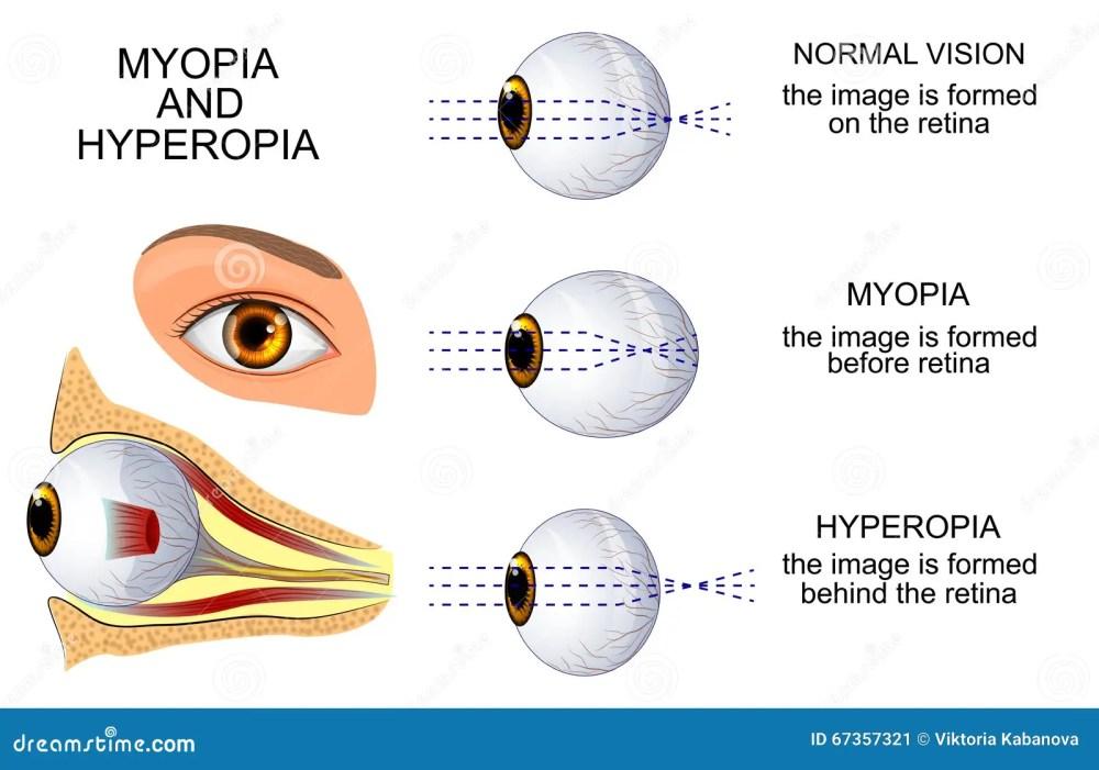medium resolution of illustration of a healthy eye the eye myopia and hyperopia