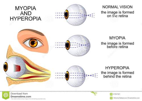 small resolution of illustration of a healthy eye the eye myopia and hyperopia