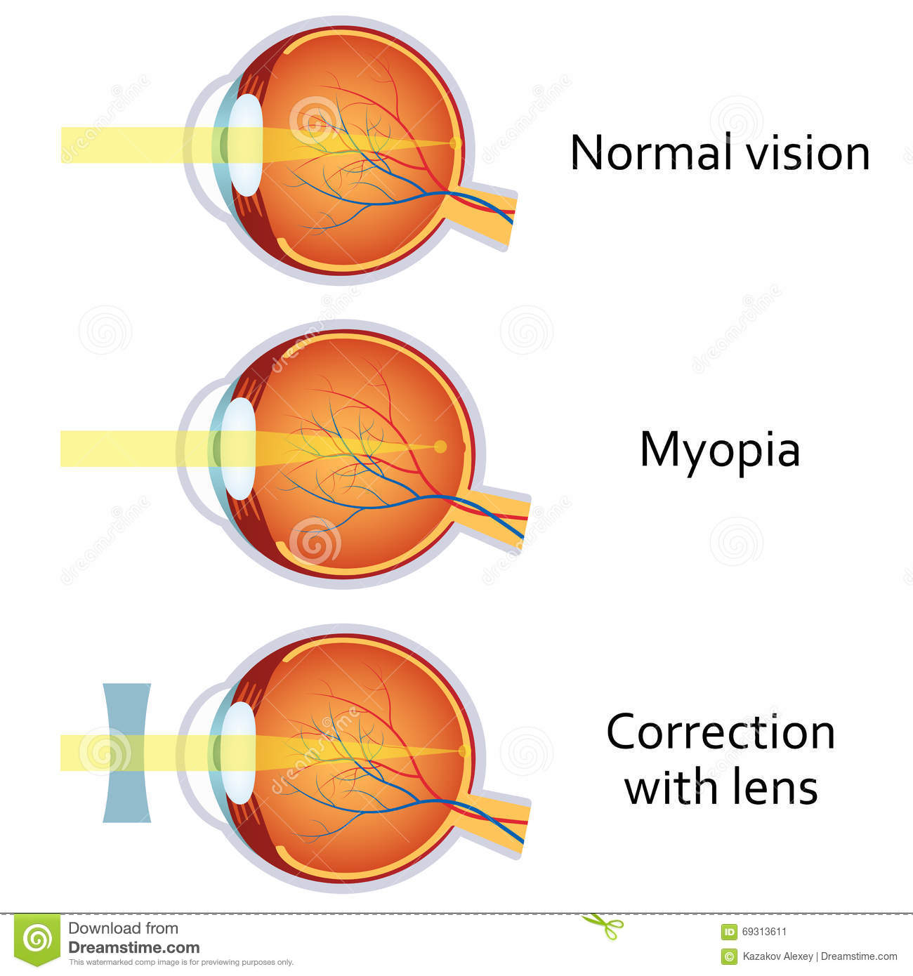 long and short sighted diagram th400 kickdown wiring myopia corrected by a minus lens stock vector