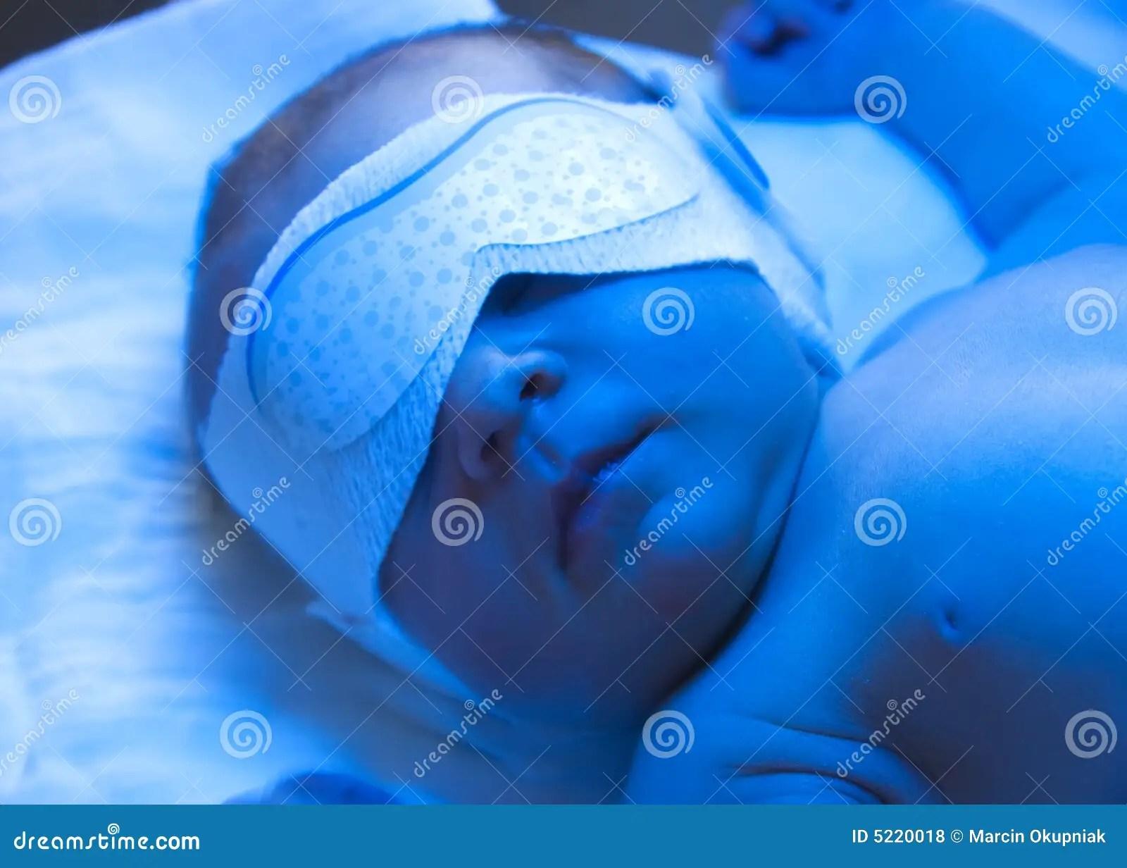 Newborn jaundice treatment stock photo Image of diaper  5220018