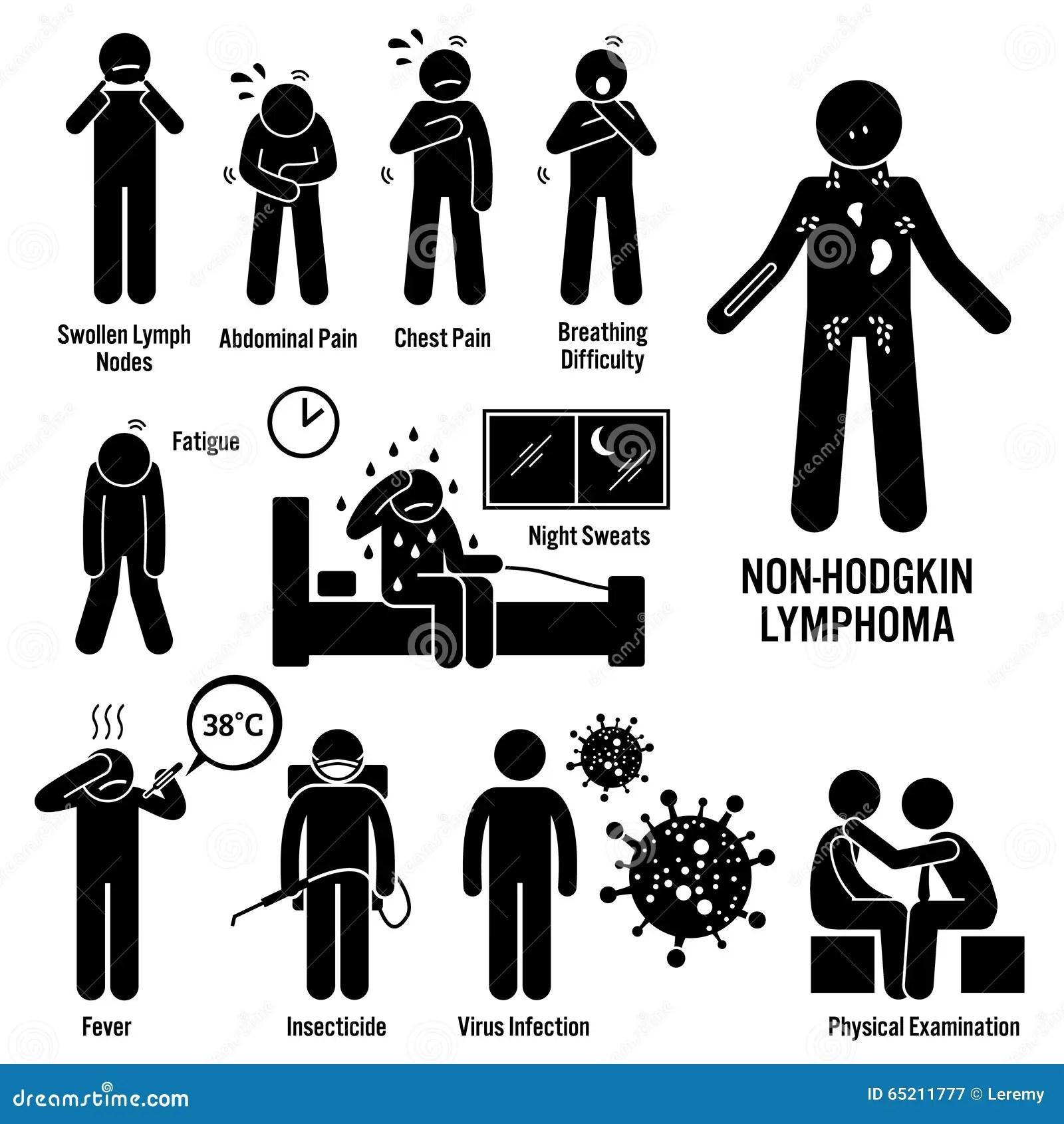 Non Hodgkin Lymphoma Lymfatische Kanker Clipart Vector