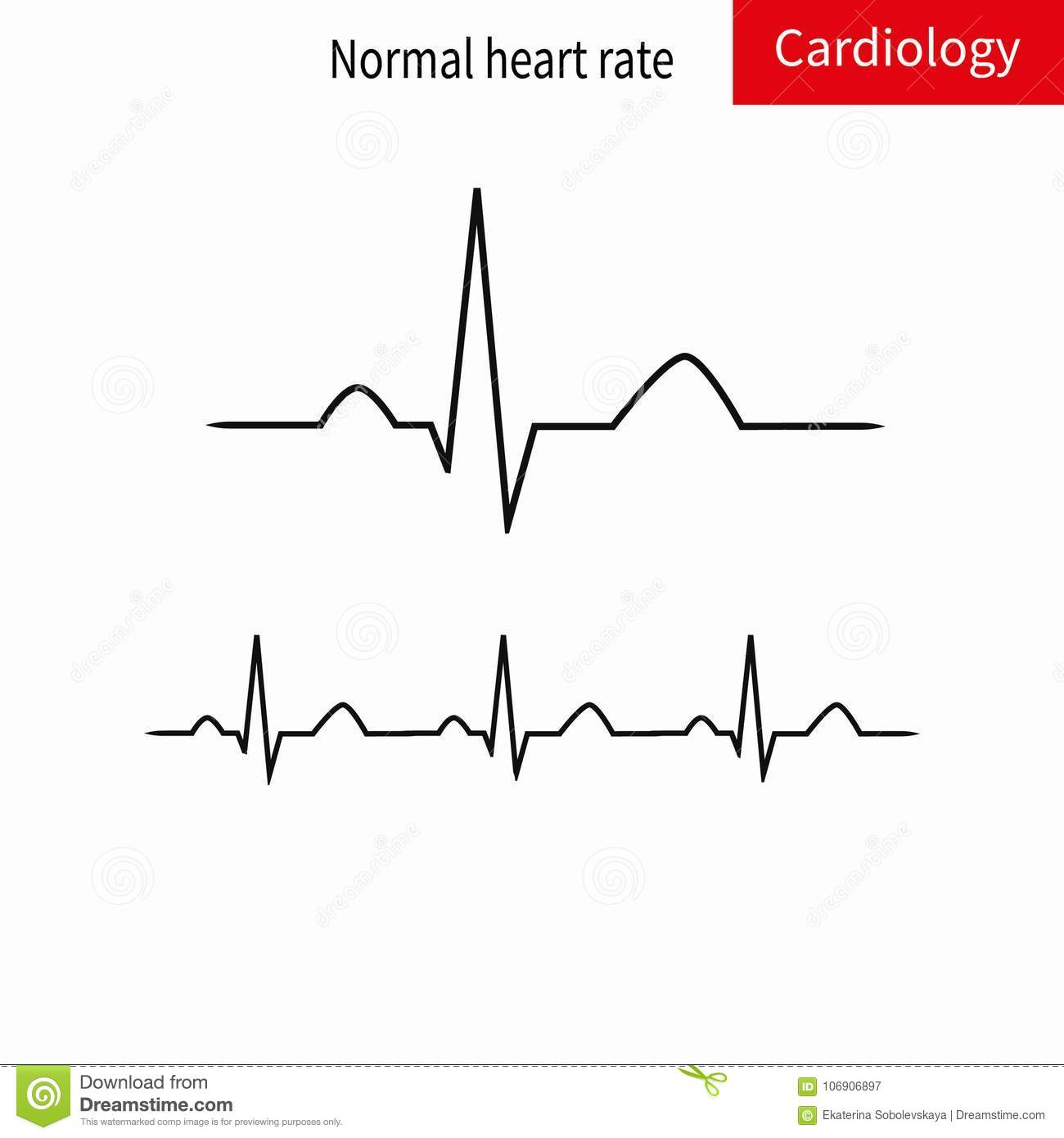 hight resolution of normal ecg complex and normal sinus rhythm