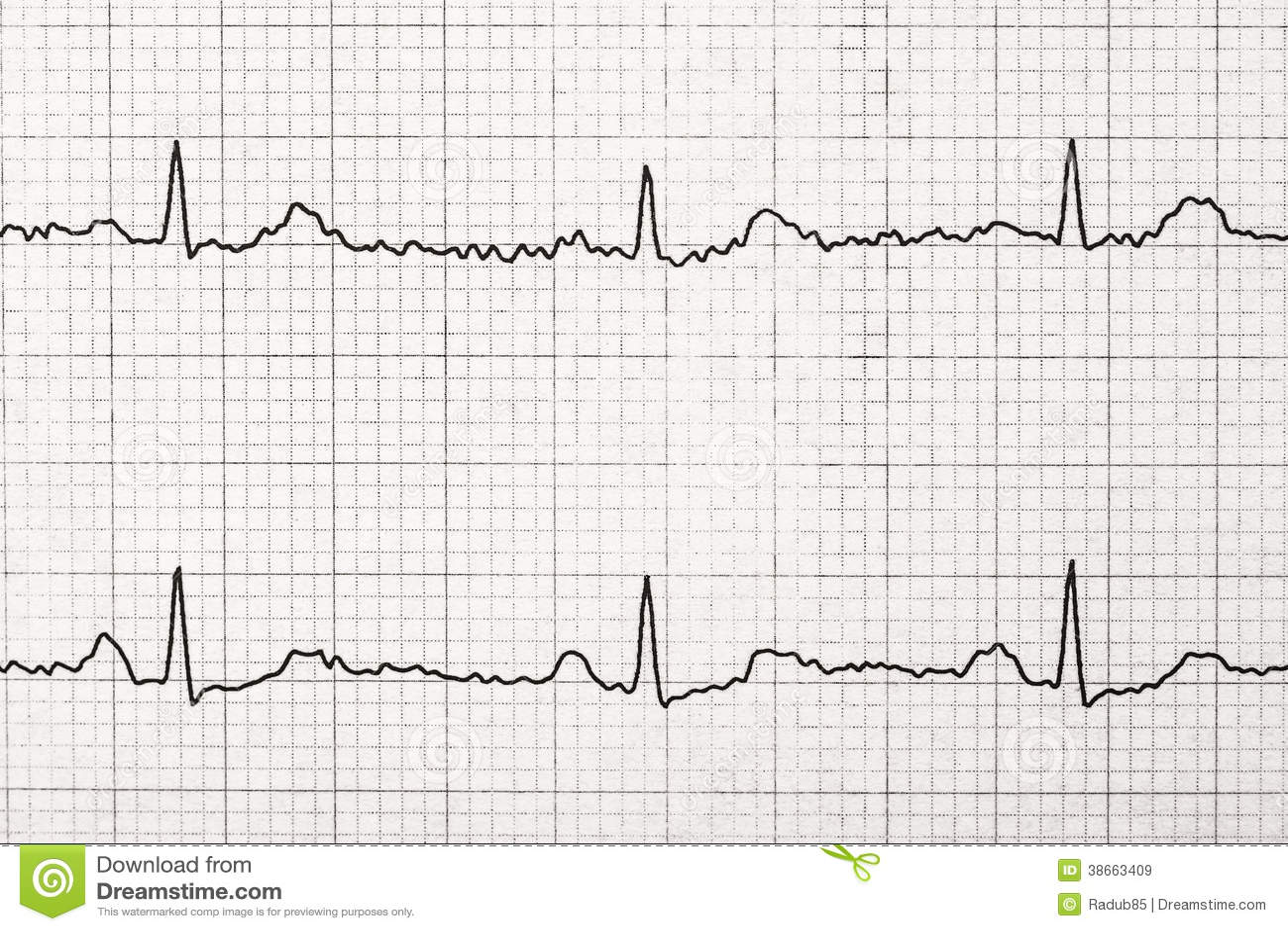Normal Electrocardiogram Record Macro Royalty Free Stock
