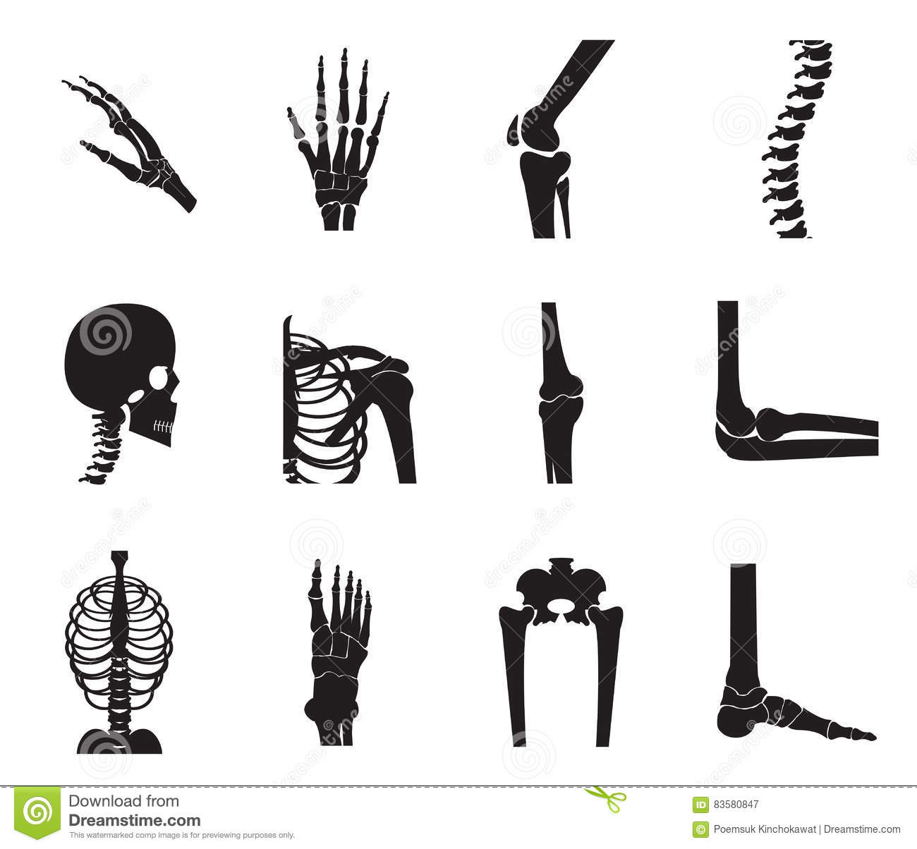 Human Joints Vector Set Orthopedic And Spine Cartoon