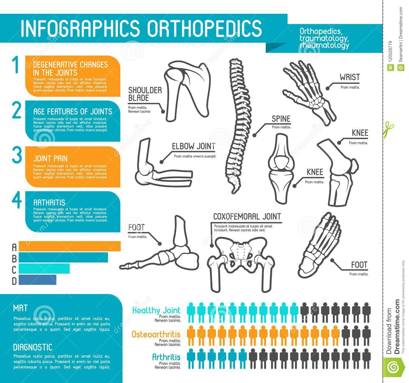 hight resolution of joint and bone disease statistic graph and chart human skeleton anatomy diagram with spine foot and hand knee shoulder elbow and pelvis body part