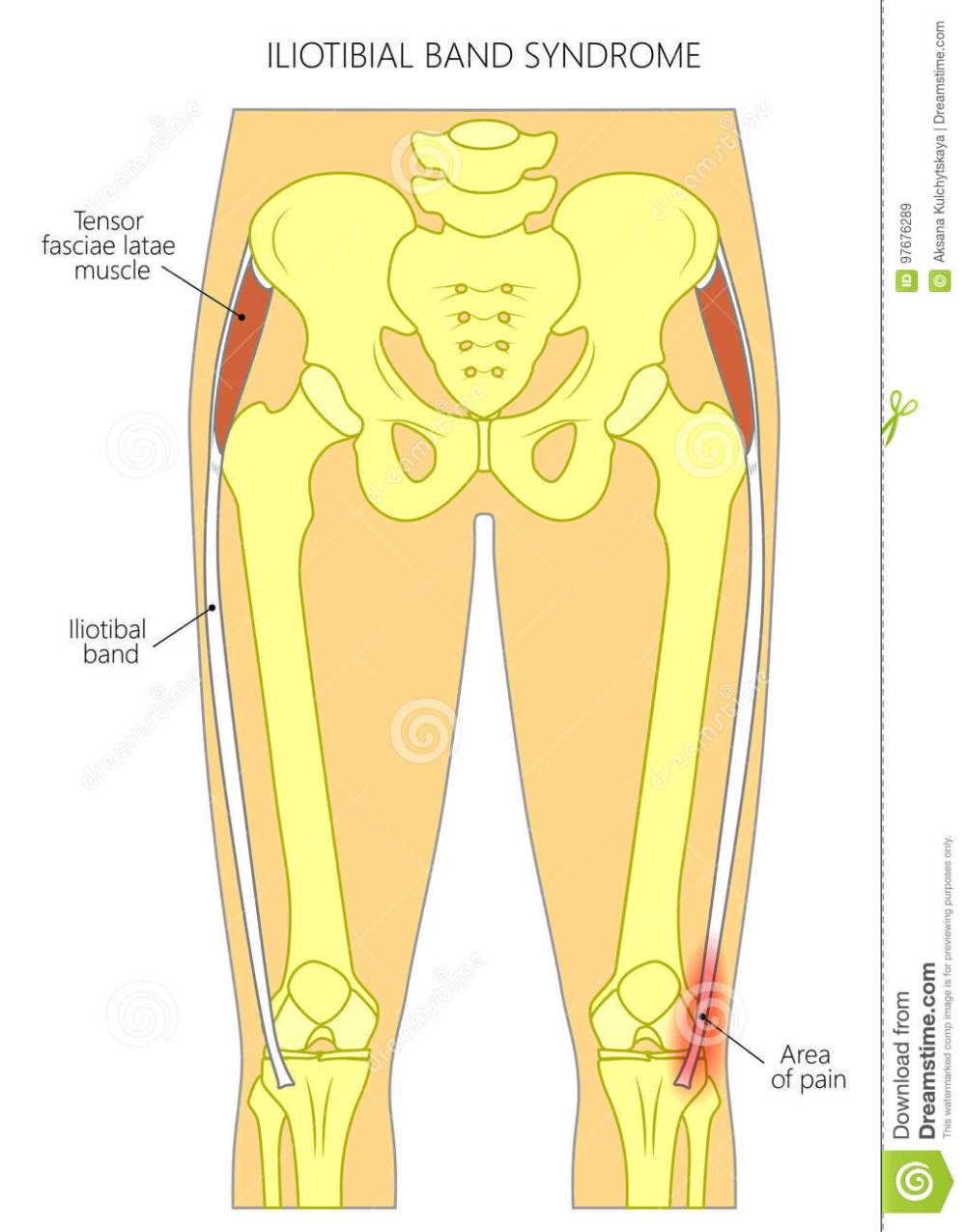 medium resolution of pain in the hip joint iliotibial band syndrome