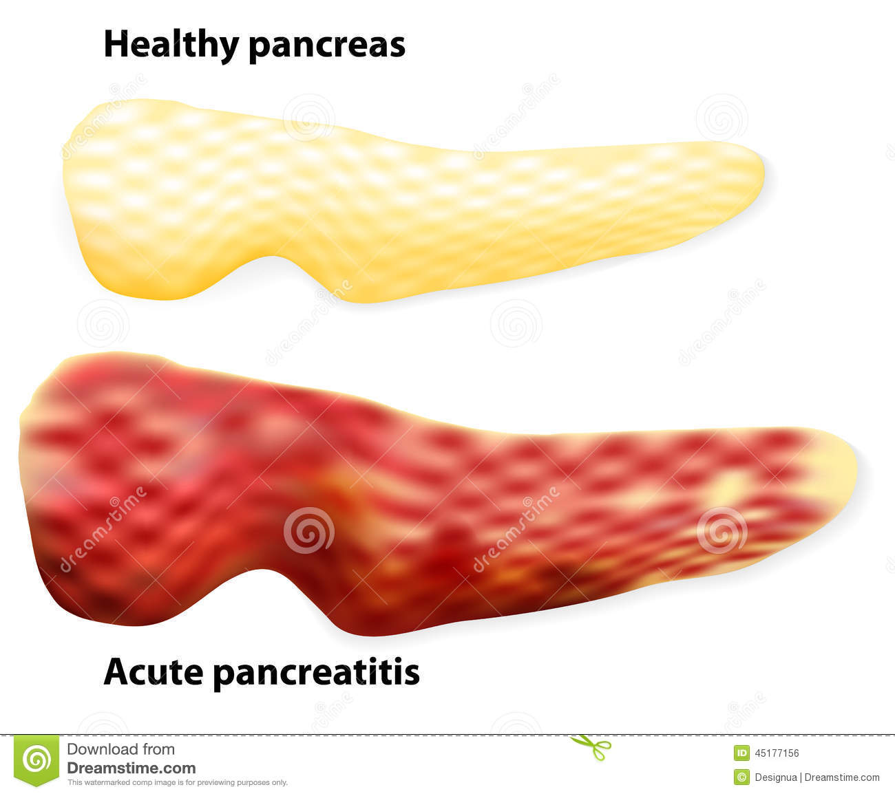 Pancreatitis The Differences Between Healthy Pancreas And