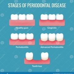 Diagram For 5 Gum 2004 Honda Odyssey Wiring Periodontal Disease Chart Stock Vector Image Of Hygiene