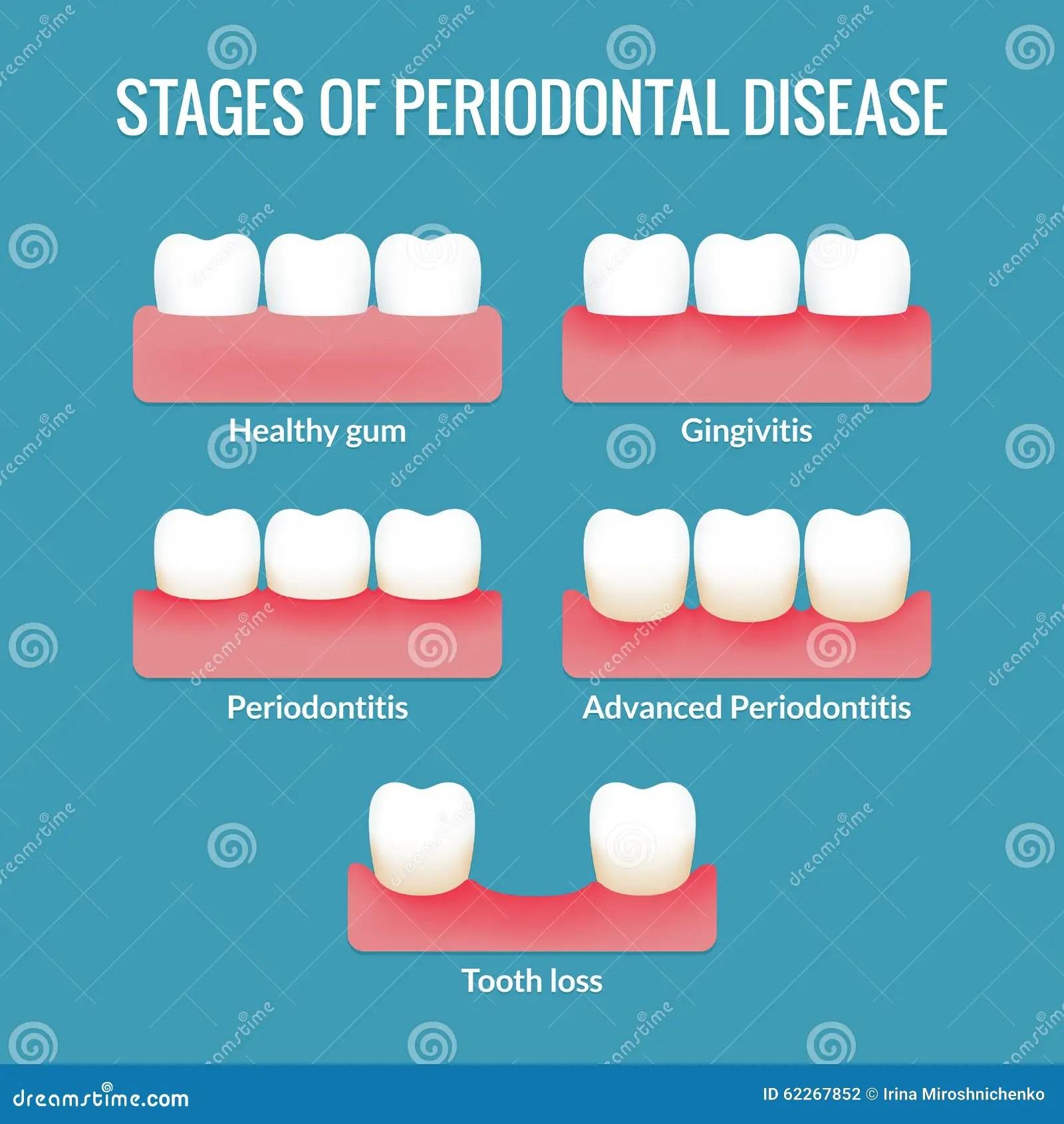 diagram for 5 gum bosch internal regulator alternator wiring periodontal disease chart stock vector image of hygiene