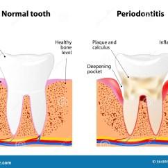 Diagram For 5 Gum N14 Jake Brake Wiring Periodontitis Stock Vector Image 56485935