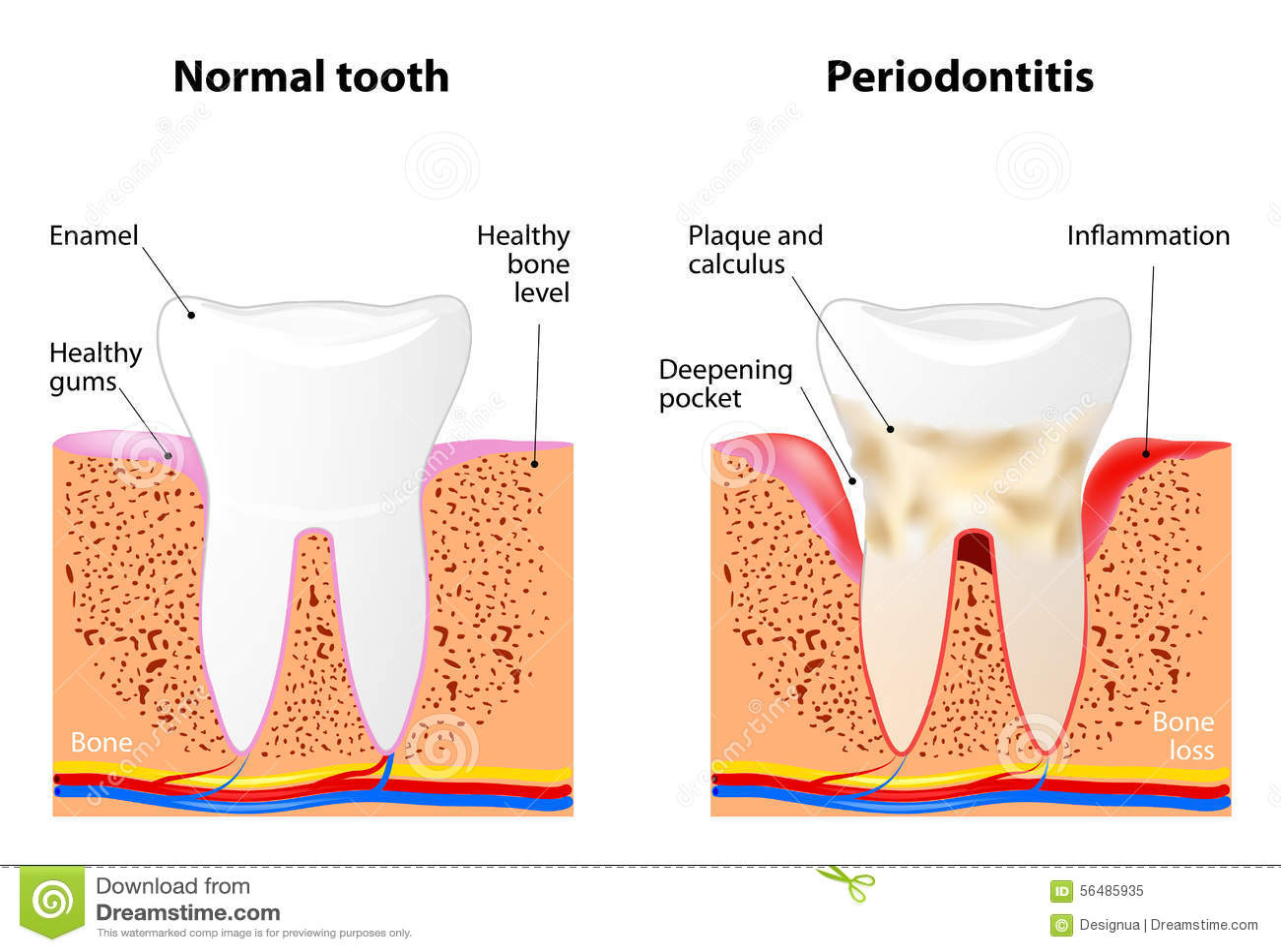 diagram for 5 gum 2003 ford ranger alternator wiring periodontitis stock vector image 56485935