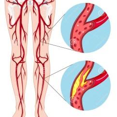Leg Venous Diagram Guitar 3 Pickup Wiring Diagrams Peripheral Arterial Disease Stock Vector