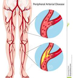 peripheral arterial disease diagram stock vector illustration of wilson s disease diet disease body diagram [ 1082 x 1300 Pixel ]