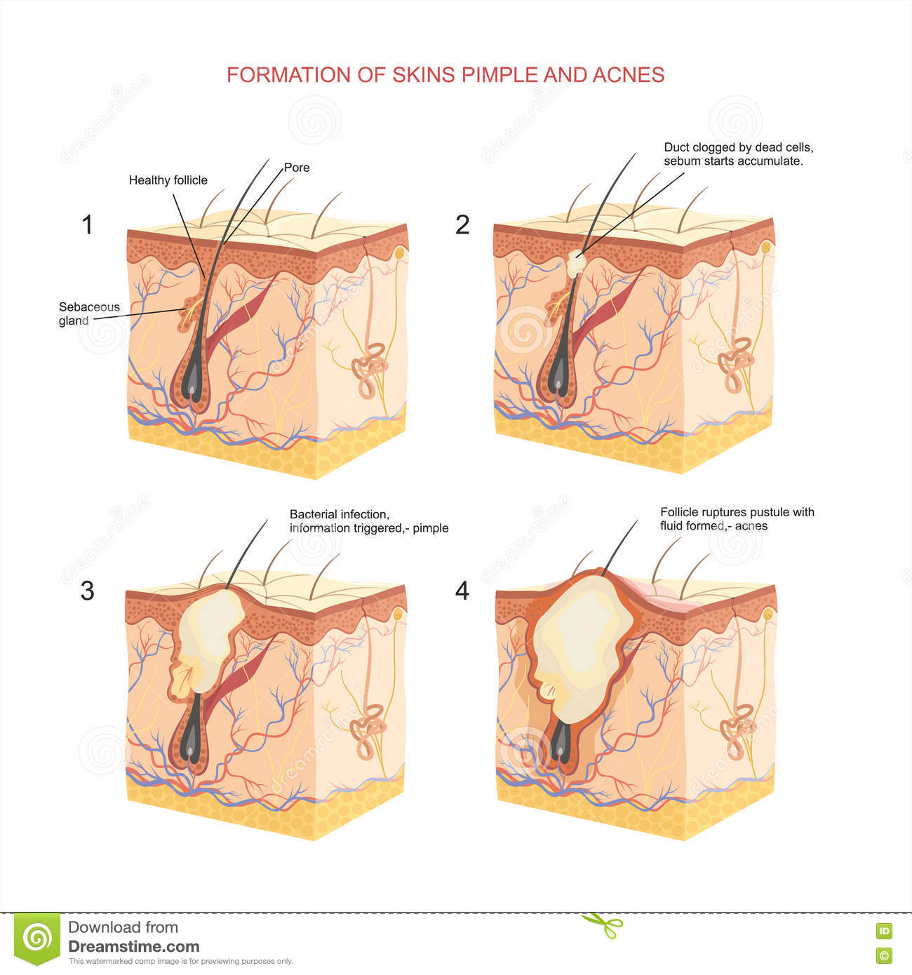 acne face diagram transfer switch wiring pimple cartoons illustrations and vector stock images 858
