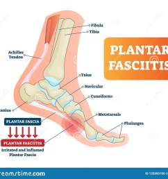 plantar fasciitis vector illustration labeled human feet disorder diagram  [ 1600 x 1408 Pixel ]