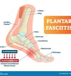 plantar fasciitis vector illustration labeled human feet disorder foot diagram images feet diagram image [ 1600 x 1408 Pixel ]