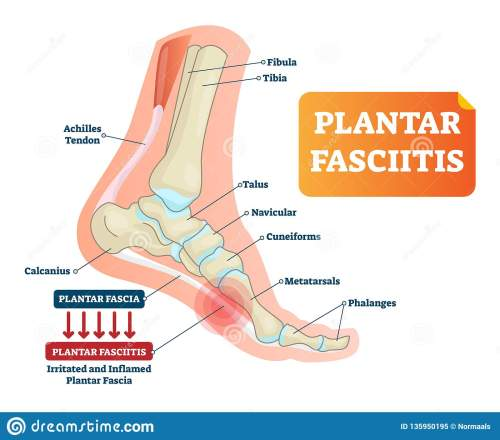 small resolution of plantar fasciitis vector illustration labeled human feet disorder diagram