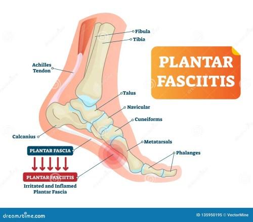 small resolution of plantar fasciitis vector illustration labeled human feet disorder medical diagram of the right foot medical diagram of foot