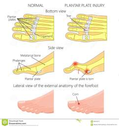 vector illustration diagram hammer toe plantar plate injury mechanism of rupture of plantar plate of the second toe of the foot  [ 1300 x 1390 Pixel ]