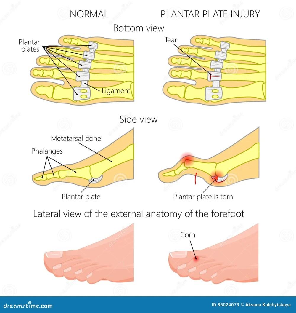 medium resolution of vector illustration diagram hammer toe plantar plate injury mechanism of rupture of plantar plate of the second toe of the foot