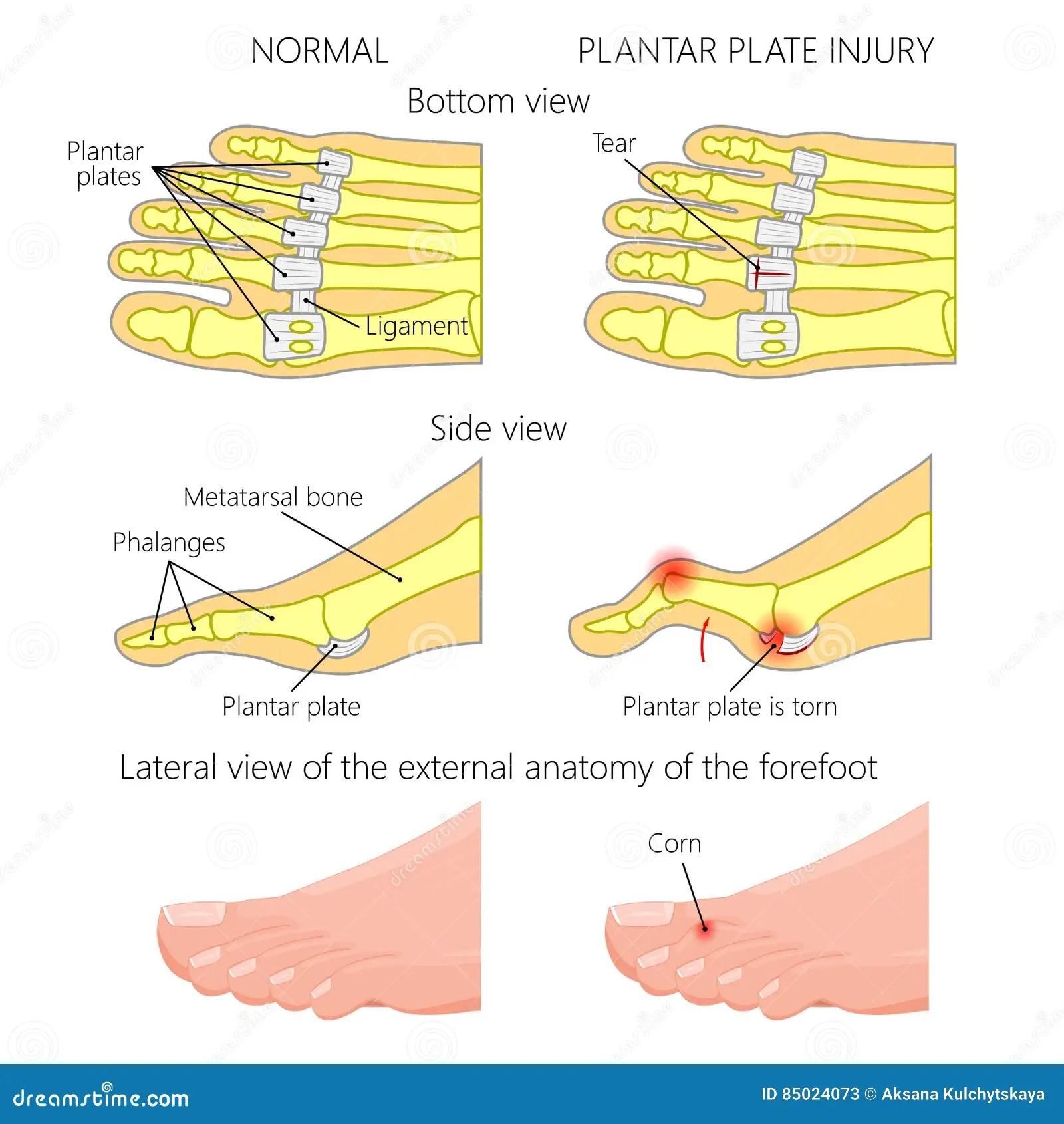 hight resolution of vector illustration diagram hammer toe plantar plate injury mechanism of rupture of plantar plate of the second toe of the foot