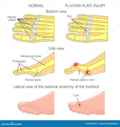 small resolution of vector illustration diagram hammer toe plantar plate injury mechanism of rupture of plantar plate of the second toe of the foot