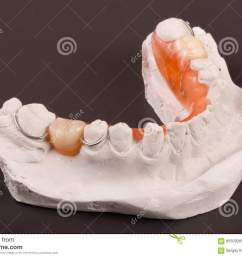 a plaster cast of teeth with removable partial denture on a dark background  [ 1300 x 957 Pixel ]