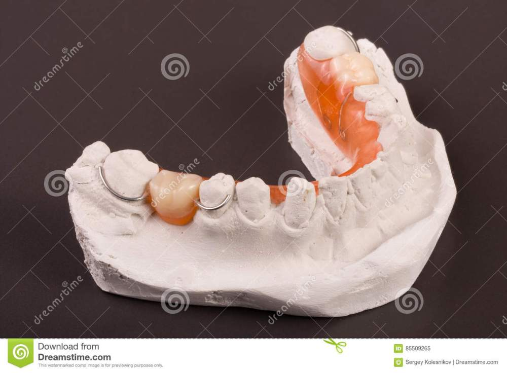 medium resolution of a plaster cast of teeth with removable partial denture on a dark background