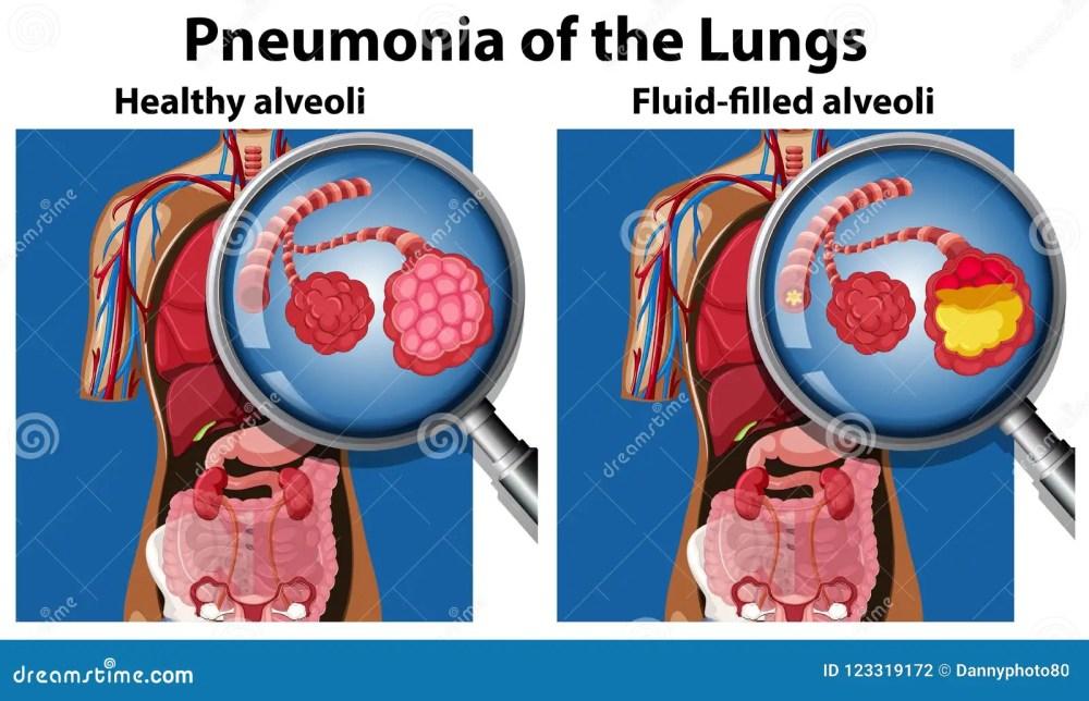 medium resolution of pneumonia of the lungs concept