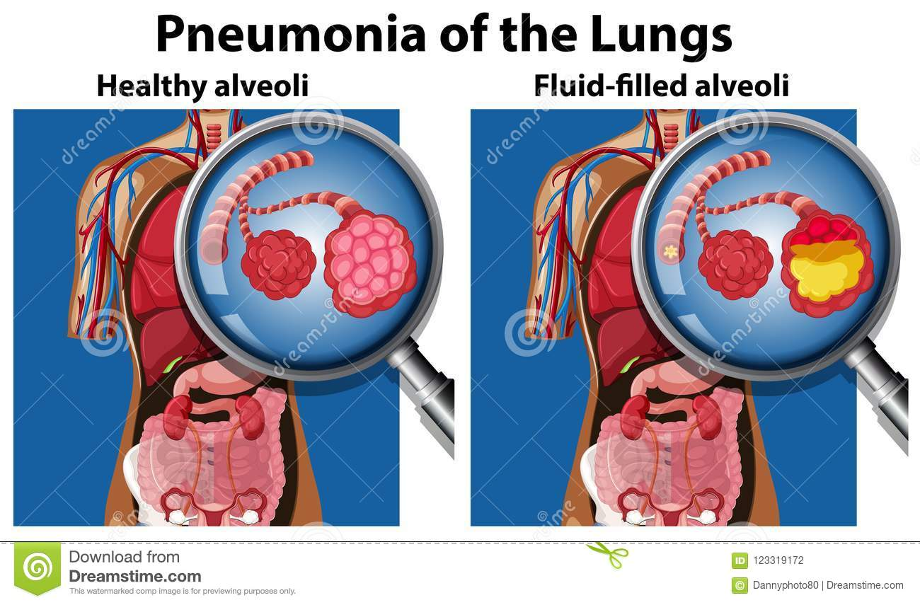 hight resolution of pneumonia of the lungs concept