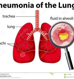 pneumonia of the lungs diagram stock vector illustration of pneumonia lung diagram [ 1300 x 1115 Pixel ]