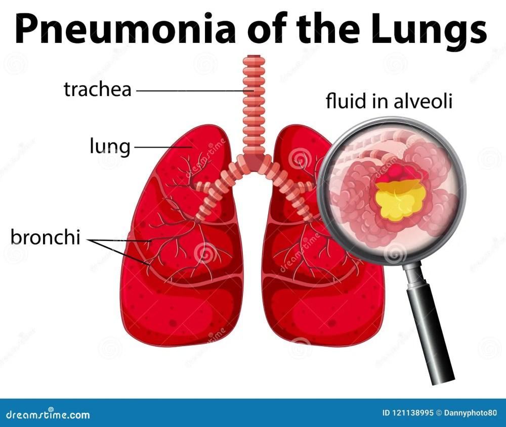 medium resolution of pneumonia of the lungs diagram stock vector illustration of pneumonia lung diagram