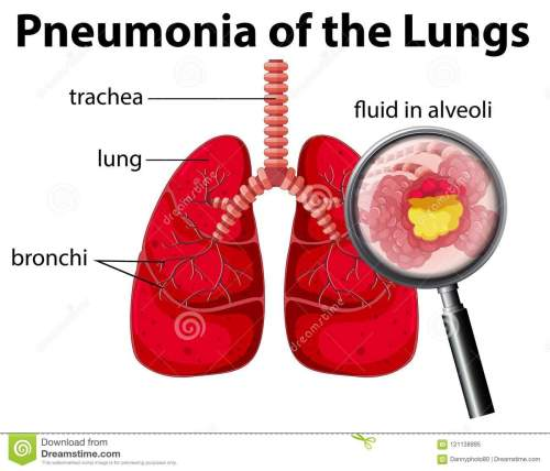 small resolution of pneumonia of the lungs diagram stock vector illustration of pneumonia lung diagram