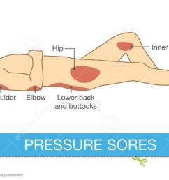 pressure sores area [ 1300 x 684 Pixel ]