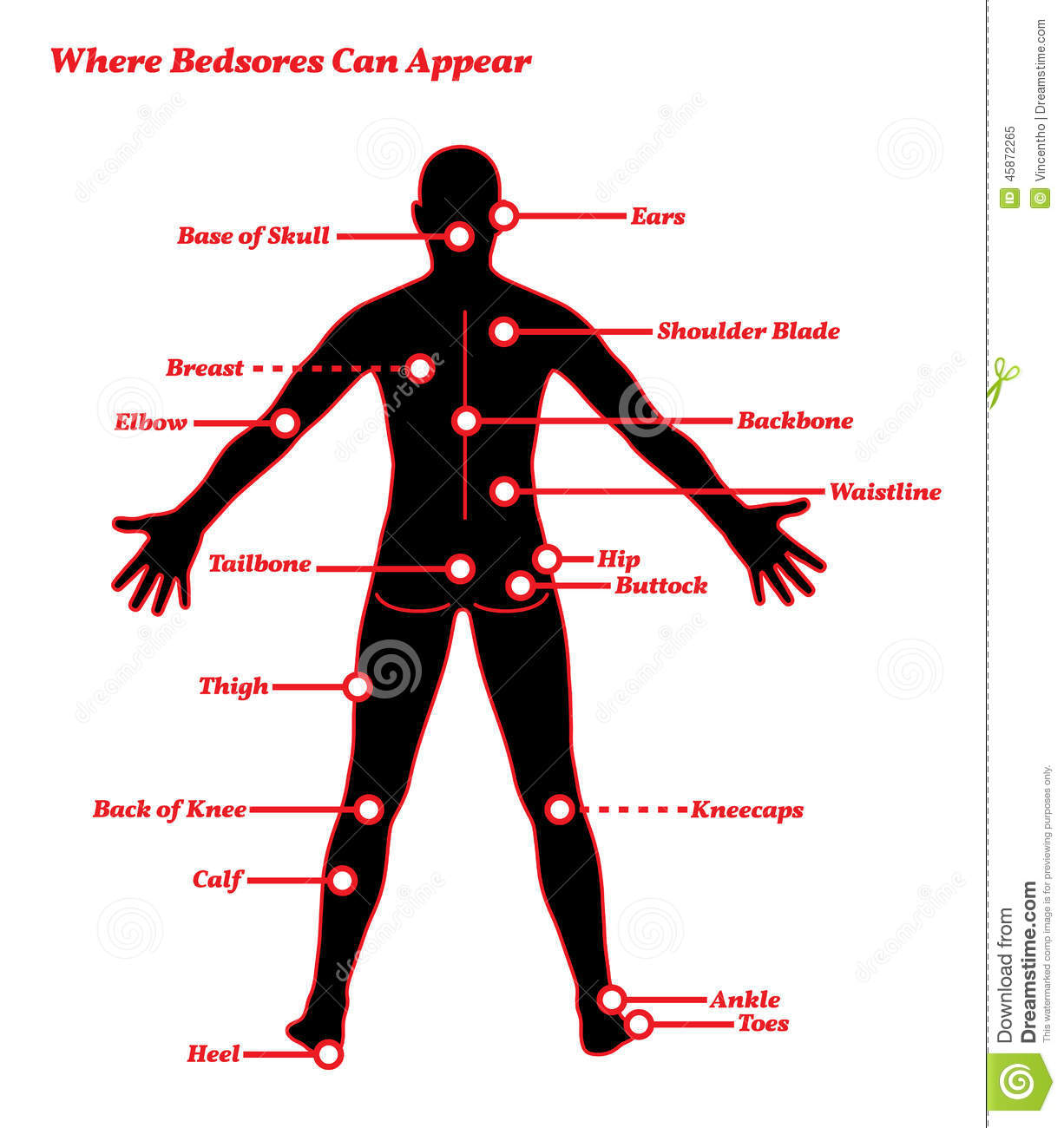 hight resolution of pressure sores bedsores ulcers human anatomy illustration
