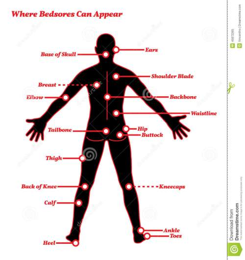 small resolution of pressure sores bedsores ulcers human anatomy illustration