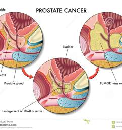 medical illustration of the effects of prostate cancer [ 1300 x 1065 Pixel ]