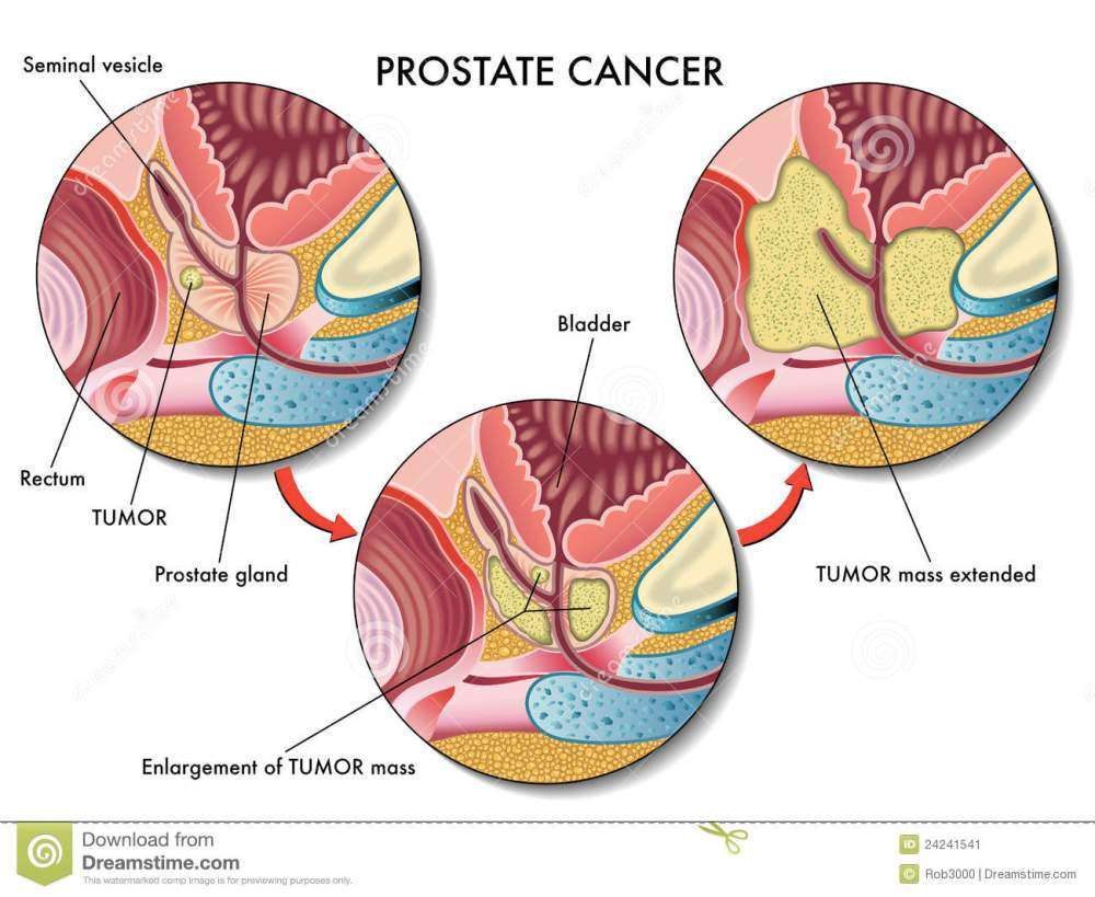 medium resolution of medical illustration of the effects of prostate cancer