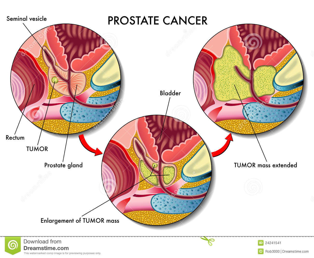 hight resolution of medical illustration of the effects of prostate cancer