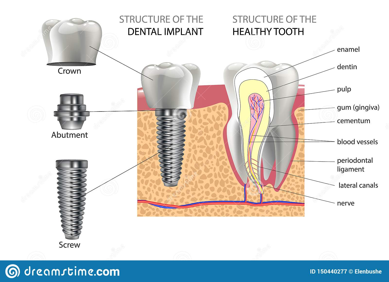 Realistic Healthy Tooth And Structure Dental Implant With