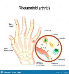 rheumatoid arthritis ra is an auto immune disease and inflammatory typical joint anatomical diagram [ 1600 x 1689 Pixel ]