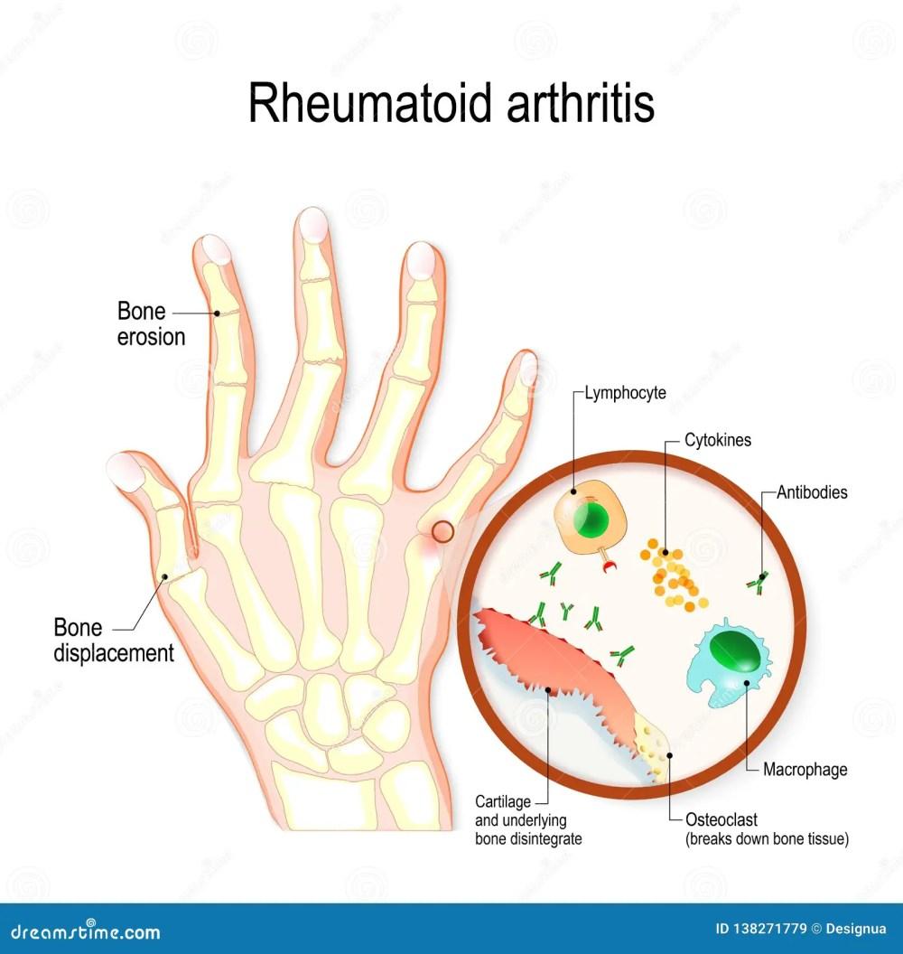 medium resolution of rheumatoid arthritis ra is an auto immune disease and inflammatory typical joint anatomical diagram