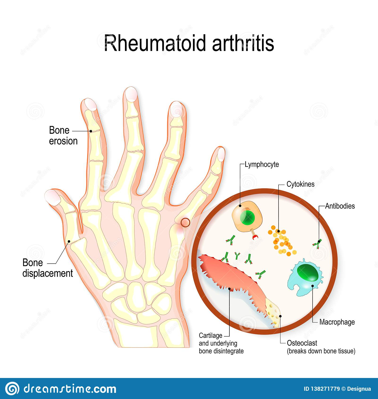 hight resolution of rheumatoid arthritis ra is an auto immune disease and inflammatory typical joint anatomical diagram