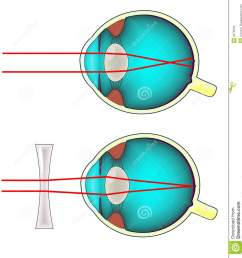 diagram of a shortsighted human eye corrected with a concave lens [ 1262 x 1300 Pixel ]